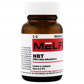NBT, 5 G